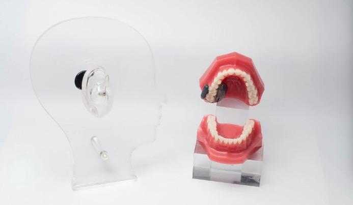 全球首款牙骨传导听力系统上市 细分领域新赛道能否孕育出独角兽?